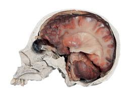 Crâne plastiné